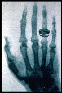 Röntgenstrahlen (Rayon X, radiologie) dans Erfindungen (inventions) roentgen2_big-200x300